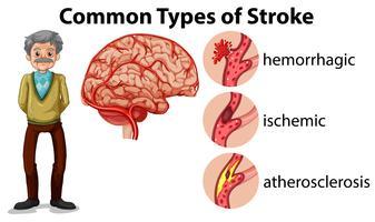 Et vieil homme et types d'accident vasculaire cérébral vecteur