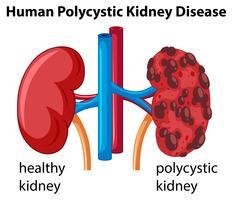 Diagramme montrant une maladie rénale polykystique humaine vecteur