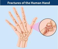 Diagramme des fractures dans la main humaine vecteur