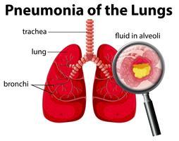 Schéma de la pneumonie des poumons vecteur
