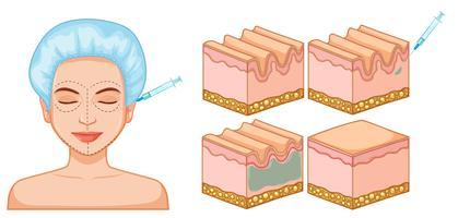 Lady botox pour le visage et la peau vecteur