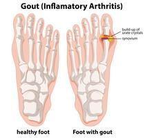 Explication schématique de la goutte dans le pied humain vecteur
