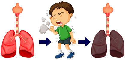 Garçon fumant et cancer du poumon vecteur