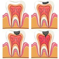 Diagramme de la carie dentaire en détail vecteur