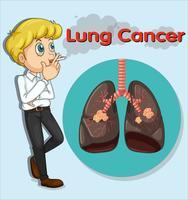 Homme fumant et cancer du poumon vecteur
