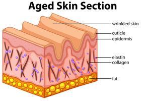 Diagramme de coupe de peau âgée vecteur