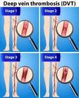 Quatre stades de thrombose veineuse profonde