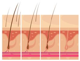 Concept de peau de perte de cheveux