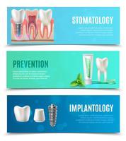Ensemble de 3 bannières horizontales pour implants dentaires