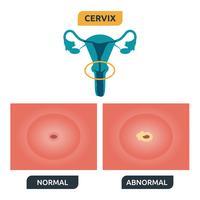 col de l'utérus vecteur
