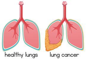 Un dessin de l'état des poumons vecteur