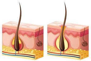 Diagramme montrant les cheveux qui poussent de la peau