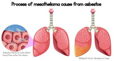 Processus de mésothéliome cause d'amiante