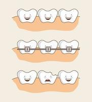 Ensemble d'images de dents dentaires de dessin animé vecteur