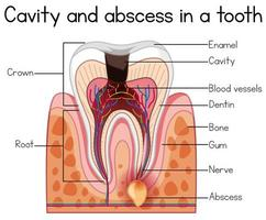 Cavité et abcès dans une dent