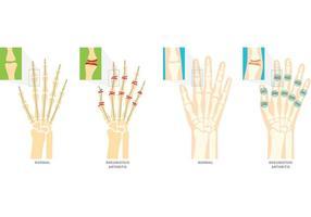 Symboles vectoriels de l'arthrite rhumatoïde vecteur