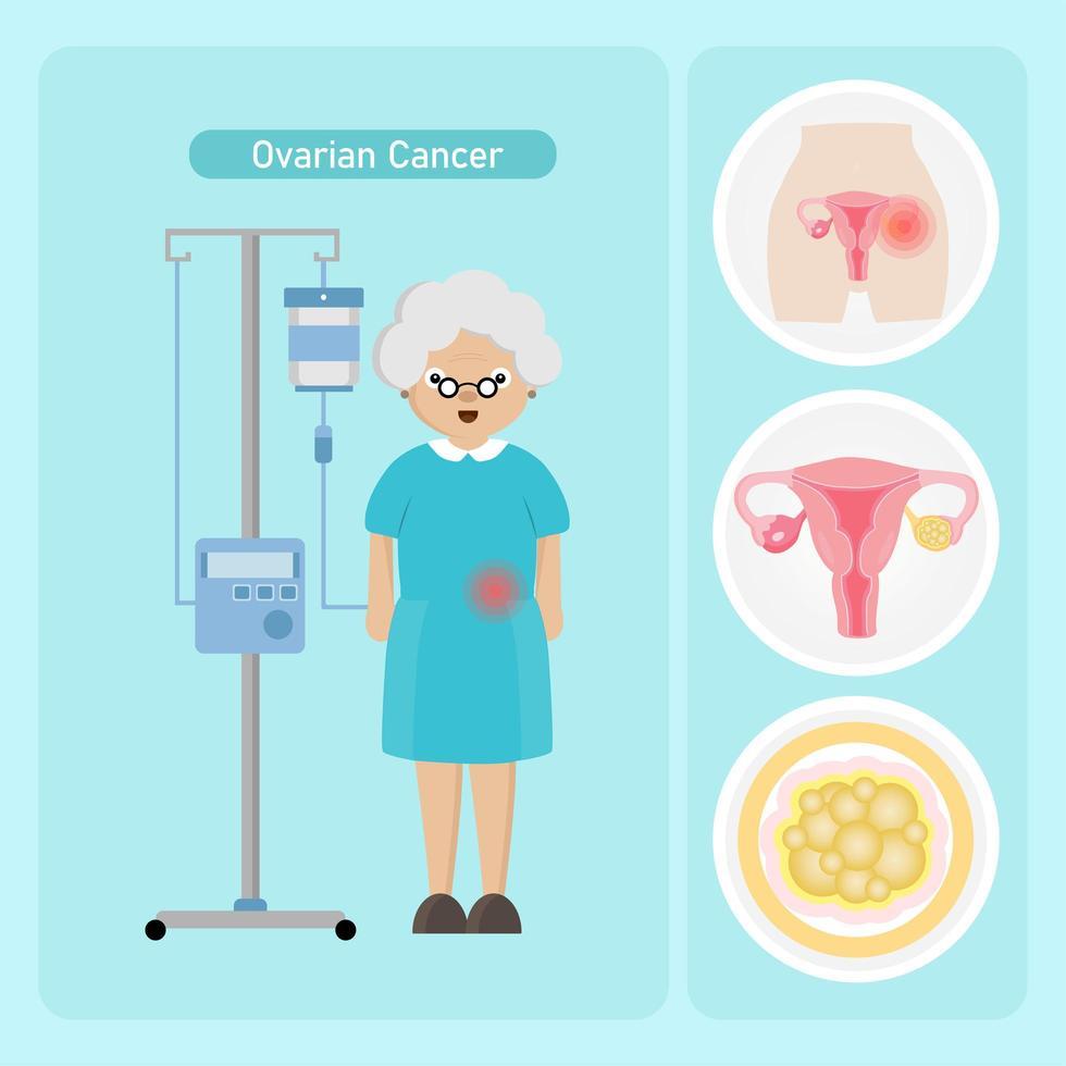 mulher idosa com câncer de ovário vetor