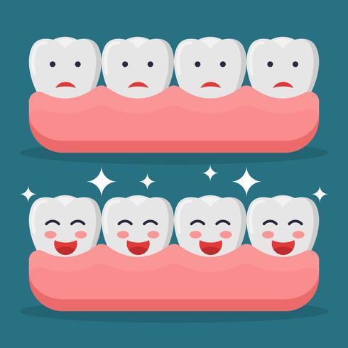 Vetores de dentes falsos