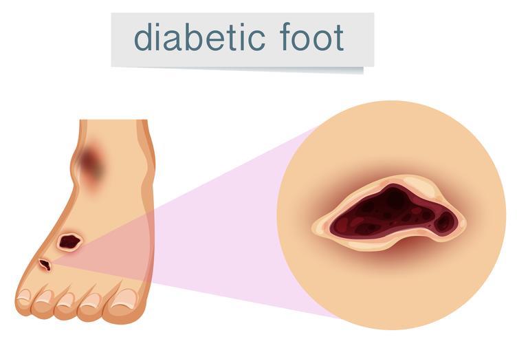 Um pé humano com diabético vetor