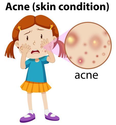 Um, menina jovem, tendo, acne vetor