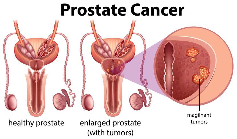 Câncer de próstata em fundo branco vetor