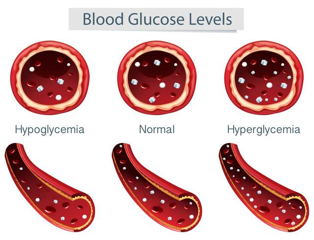 3 diferentes níveis de glicose no sangue vetor