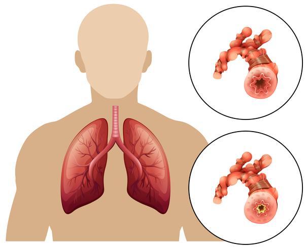 Doença Pulmonar Obstrutiva Crônica Humana vetor