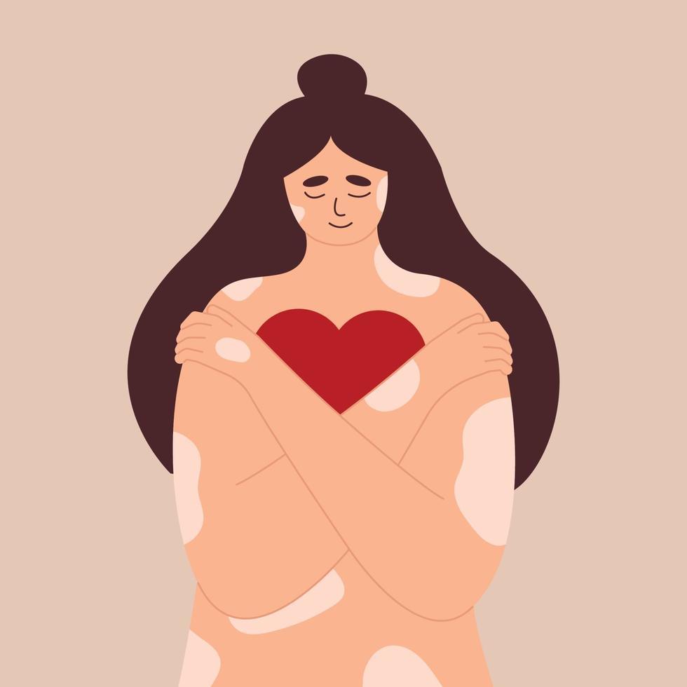 jovem com doença de pele psoríase, menina com vitiligo abraços vetor