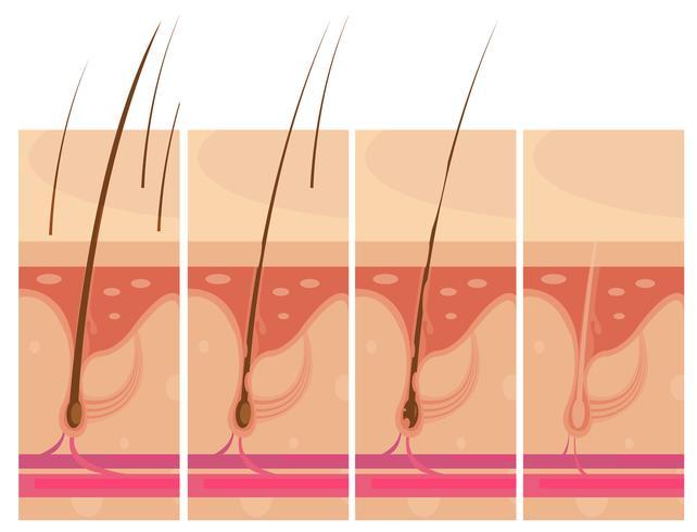 Conceito de pele de perda de cabelo vetor