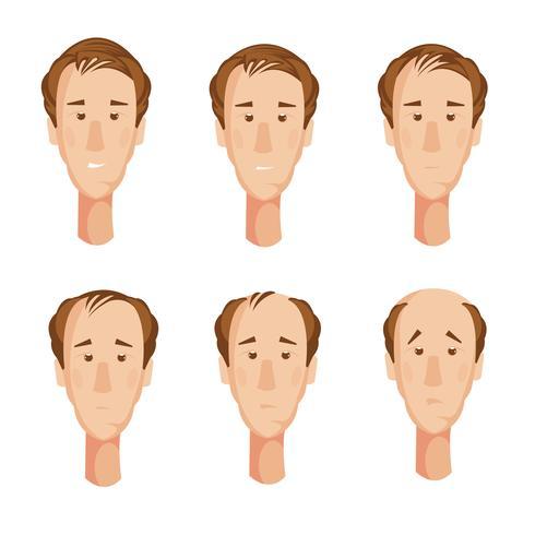 Conjunto de cabeças de homem careca vetor