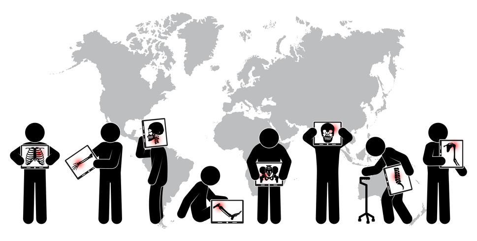 Homem de pau manter tela do monitor: mostrar o esqueleto, mapa do mundo (conceito mundial de saúde) (Tuberculose pulmonar, artrite, espondilose cervical, espondilolistese lombar, escoliose, acidente vascular cerebral) vetor