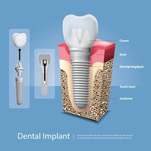 Dentes humanos e ilustração vetorial de implante dentário vetor