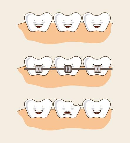 Conjunto de imagens de dentes dentais dos desenhos animados vetor