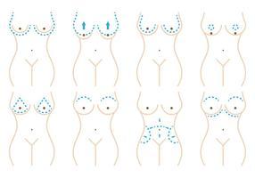 Cirurgia de mama vetor