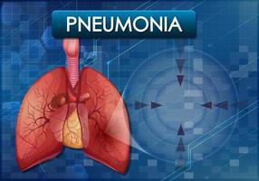 pneumonia que adoece o pulmão humano vetor