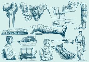 Ilustrações de tratamento de fracturas azuis