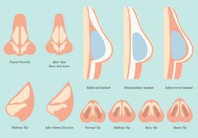 Vetores da operação cirúrgica