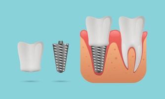 conceito de estrutura de implante dentário vetor