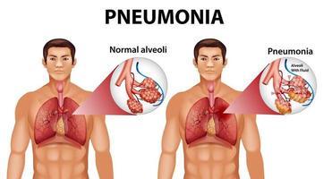 projeto educacional de anatomia humana de pneumonia vetor