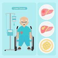 homem sênior com câncer de fígado vetor