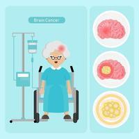 mulher idosa com câncer no cérebro vetor