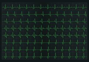 Gráfico de pulso cardíaco vetor