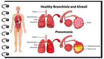 pulmões humanos saudáveis e não saudáveis