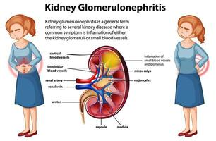 infográfico médico de glomeruloesclerose renal vetor