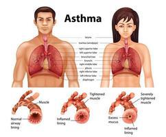 comparação de pulmão saudável e pulmão asmático vetor