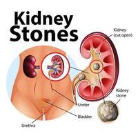 ilustração informativa de pedras nos rins vetor