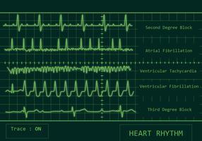 Pacote do vetor do ritmo cardíaco