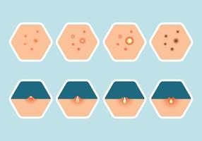 Conjunto de ícones de pimples vetor