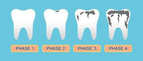 cárie dentária e estágio da doença. vetor