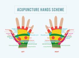 Ilustração vetorial da acupuntura vetor